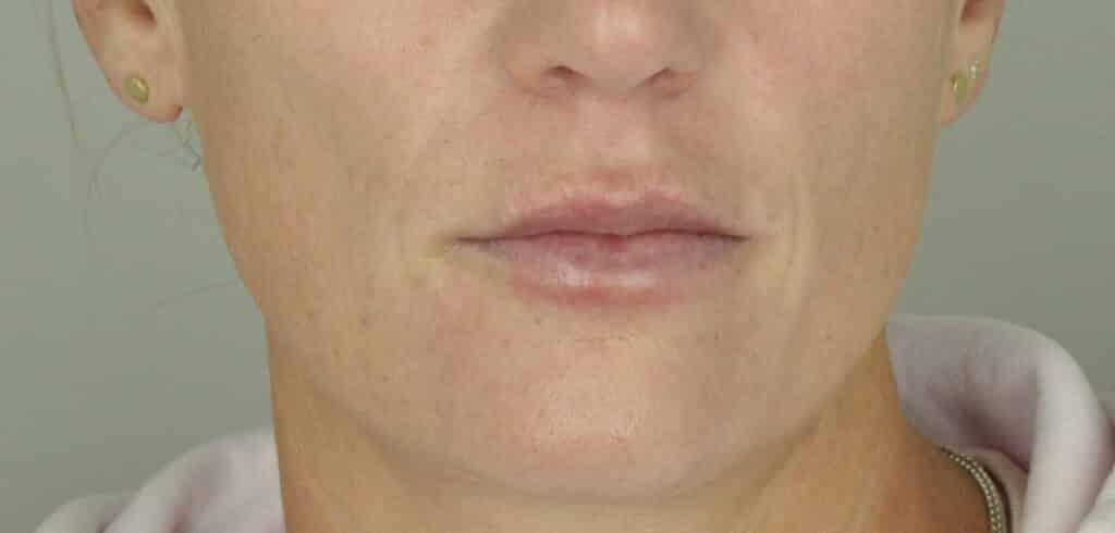 Directly after lip filler